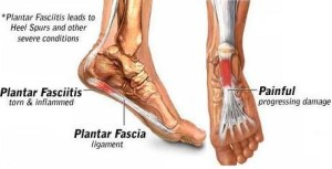 reflexology and plantar fasciitis